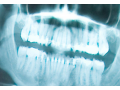 invisible-fillings-new-zealand-small-9