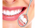 invisible-fillings-new-zealand-small-3