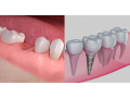 hygienist-care-services-small-5